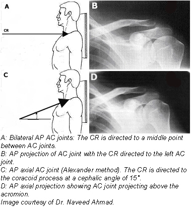 10. CR: In the Pearson method (AP projection) the CR is perpendicular to the midpoint between the AC joints for a single projection, and is directed at each respective AC joint when two separate