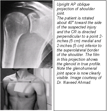 (Fig. 3) Reprinted from Merrill s Atlas of Radiographic Positions and Radiologic Procedures, 9th edition, Ballinger and Frank, page 164 (figure 5-15), copyright 1999 Mosby, with permission from