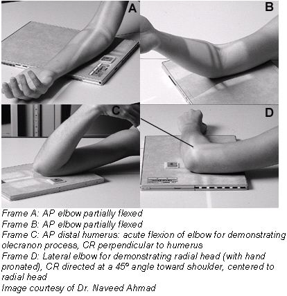 Radiographic positioning of the elbow Routine radiographic examination of elbow is performed using the AP, AP oblique, and lateral projections.