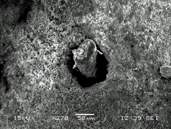 Scanning electron microscopy (SEM) has been shown to be a useful tool for the direct study of polymer-soil matrix interfaces.