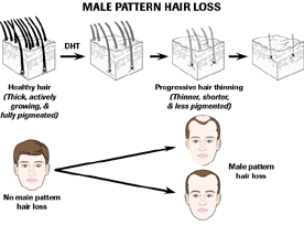 DHT causes a decrease in the growth phase and thinning of the hair (see picture). This leads to male pattern hair loss.