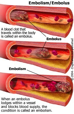 Venous Thrombo-Embolism (VTE) A pulmonary embolism (PE) is the consequence of mobilization of a deep vein