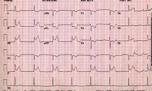 Case Review #1 12 Lead EKG Is there ST