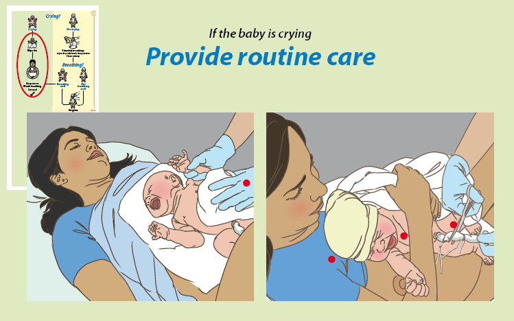 Birth Term Gestation? Amniotic fluid clear? Breathing or crying? Good muscle tone? Color pink?