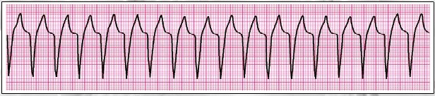 Question 3 of 13 Clinical Clues: Heart rate 150/min