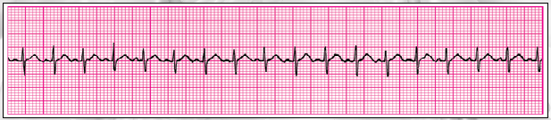 Question 5 of 13 Clinical Clues: Heart rate 188/min ; Patient is 3 years