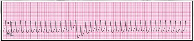 Question 9 of 13 Clinical Clues: heart rate 214/min Question