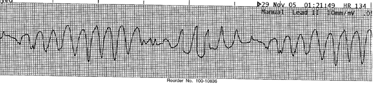 For pulseless VT and VF it is advised that only 1 shock of 150J is delivered. If the arrest (VT/VF) has been witnessed by a rescuer then 3 stacked shocks of 150J should be administered.