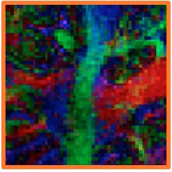 color-coded FA map High-resolution Diffusion Tensor Imaging of neural pathways Diffusion weighted image with field distortion (No correction).