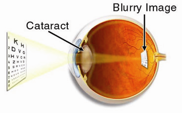 WHAT CAUSES CATARACT? Age related: The lens proteins degenerate and form opacities in the lens.