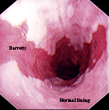 Tailor Surgical Therapy Barrett's esophagus LGD HGD Intramucosal Carcinoma