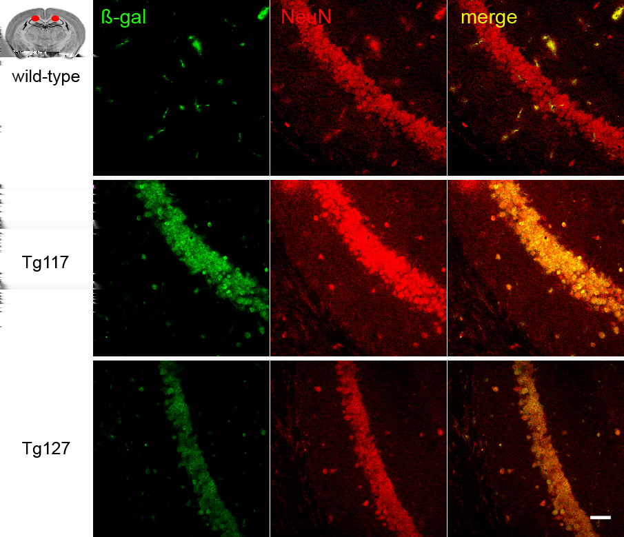 5.1 Transgenic mice with conditional expression of PrP Q167R 5 RESULTS Figure 21: Immunofluorescent labeling exposed co-localization of β-gal (green) and the neuronal marker NeuN (red) in neurons of