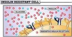 What is Insulin Resistance?