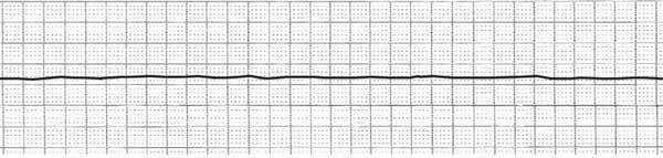 Asystole Asystole is when there is no detectable cardiac activity on EKG. It may occur immediately after cardiac arrest or may follow VF or PEA. Asystole may also follow a third degree heart block.