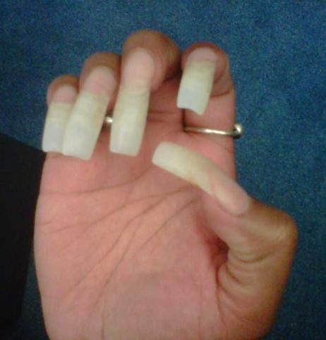 PRESSURE ULCER PREVENTION Keep YOUR nails short!