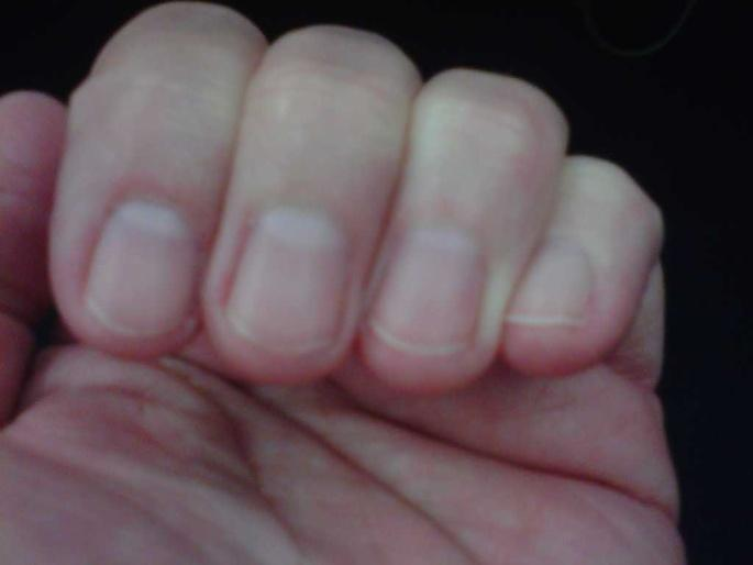 PRESSURE ULCER PREVENTION Keep YOUR nails