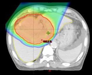 Comparison of Dose distribution of Proton beam therapy and photon beam