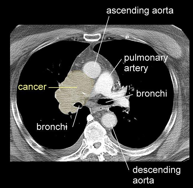 CT Small Cell Usually large mass in the mediastinal