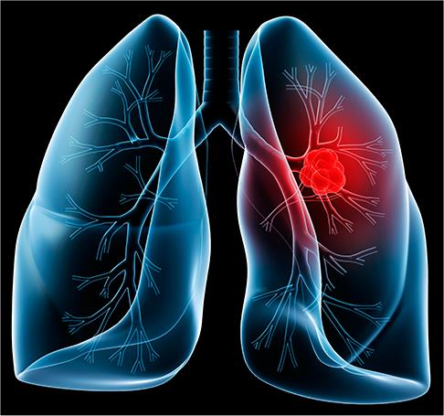 Small Cell Lung Cancer Robert