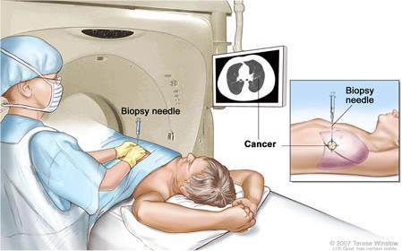 Biopsy - confirm the cancer and