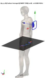 Importance of Human Body Model Detail Not only do heterogeneous structure impact the induced fields but also the posture of human body could heavily influence the fields induced