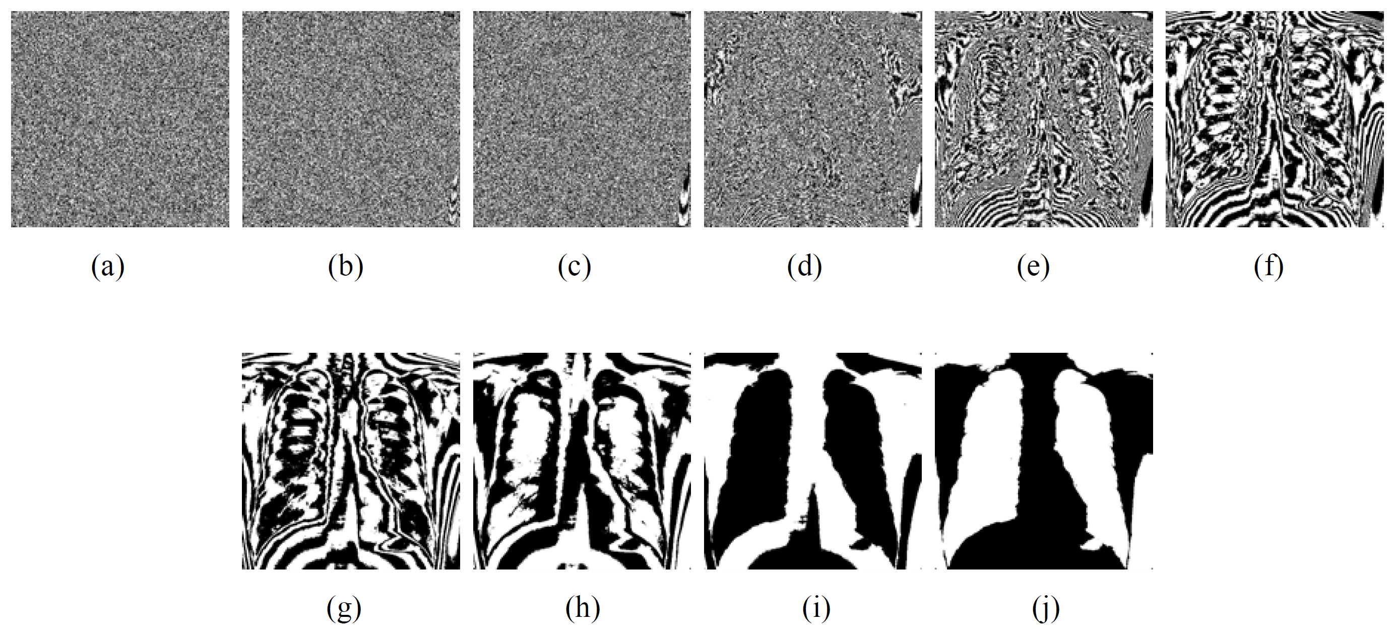 Frily Medical Image Sharing Scheme 375 Figure 8. The experimental results. (a) the random grid RG2, (b) and (c) the shares S 1 and S 2, (d) the recovered medical image.