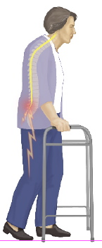Symptoms of Spinal Stenosis If you suffer from lumbar spinal stenosis you may feel various symptoms, including: dull or aching back pain spreading to your legs numbness and pins and needles in