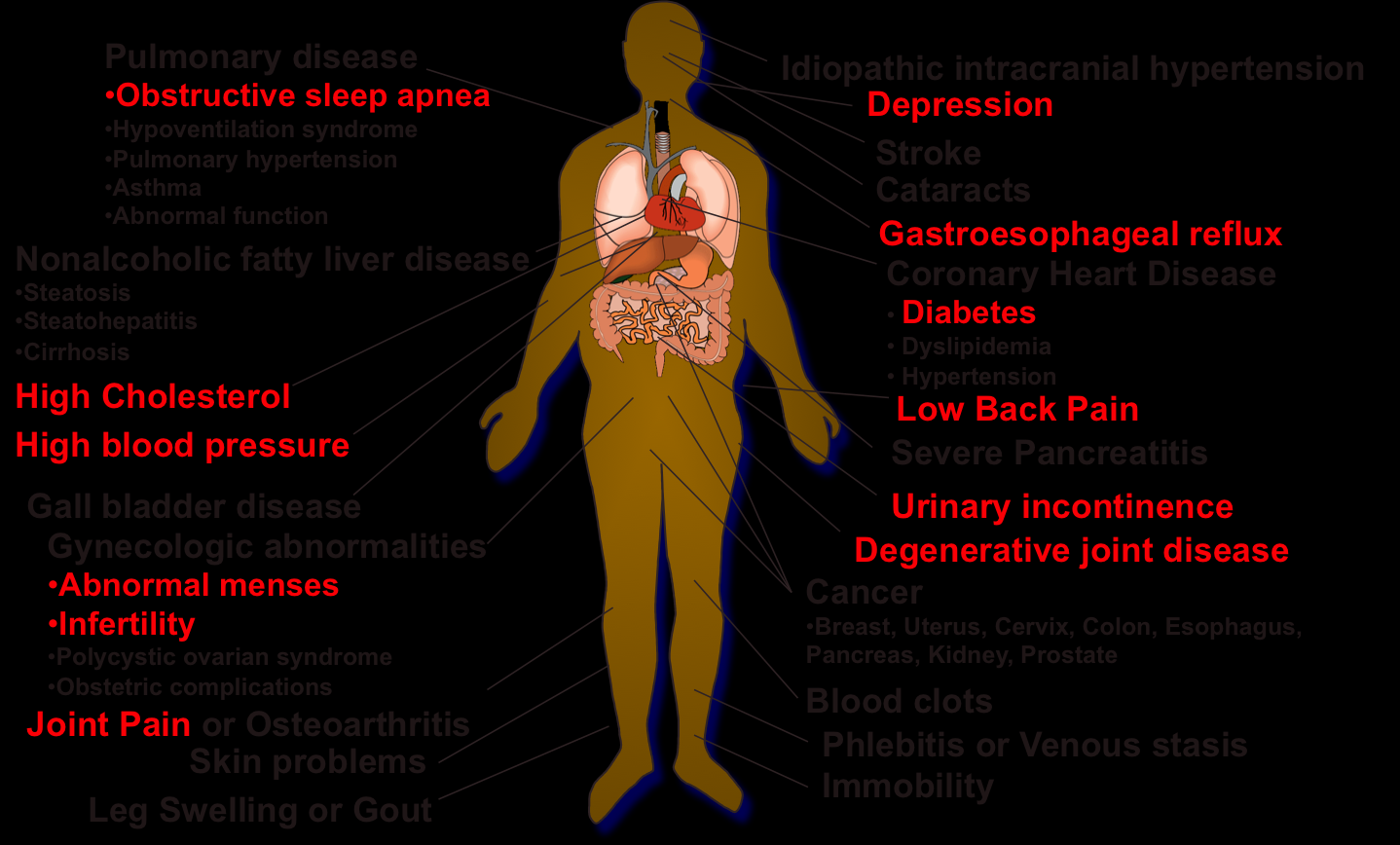 Health Consequences of Obesity The significance of obesity from a health care point of view is its association with many common medical conditions such as diabetes, high blood pressure and arthritis