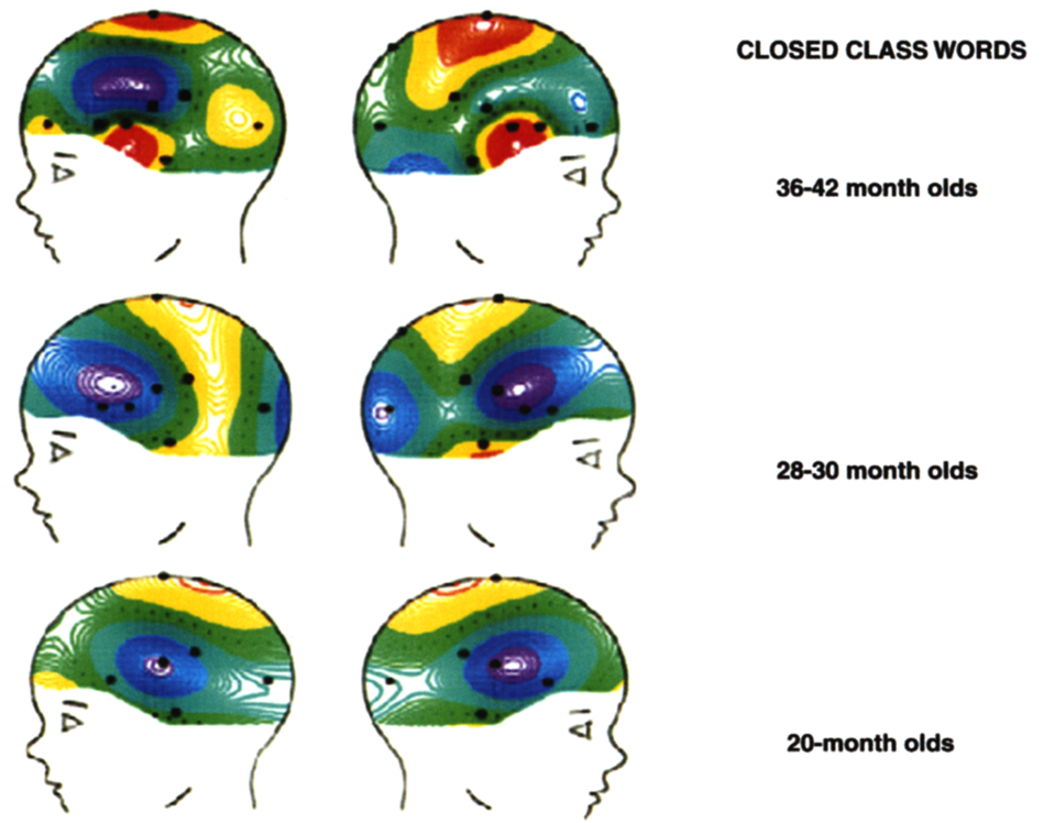 CLOSED CLASS WORDS 36-42 month olds 28-30 month olds 20-month olds CHAPTER 9, FIGURE 5 Current source density (CSD) analyses of neural activity to closed class words at 200 msec.