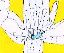 DRUJ 1. Piano key sign- for instability = ballottement of ulnar head, (prominence of ulna) 2.
