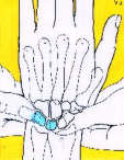 With the patient's forearm slightly pronated, the examiner grasps the wrist from the radial side, placing his thumb on the scaphoid tuberosity (as if pushing a button to open a car door) and wrapping
