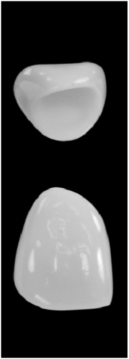 High strength porcelain crowns HSPC High strength underlying core to support veneering porcelain which gives the