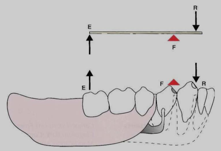 It is an imaginary axis passing through the most posterior abutments (through occlusal rests or any other rigid portion of a direct retainer assembly located