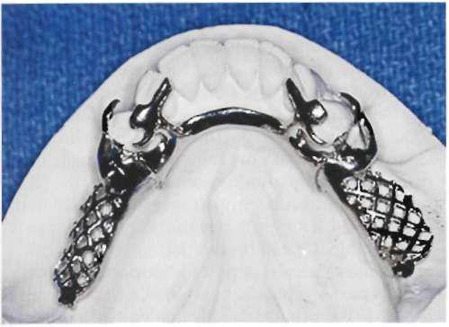 Bilateral rests are seldom indicated except when an auxiliary occlusal rest is needed for support of the major connector or when the prognosis of the distal abutment is poor and provision is being