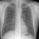 X-ray (Radiography), Chest What is a Chest X-ray (Chest Radiography)? The chest x-ray is the most commonly performed diagnostic x-ray examination.