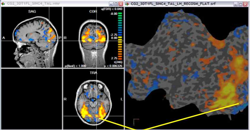 BOLD FUNCTIONAL MRI DATA PROCESSING Although there are many different types of software packages that can be used in processing BOLD functional MRI (fmri) data, the most common are SPM, BrainVoyager,