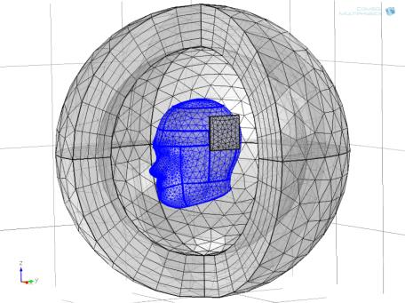 Figure 9: Mesh for the model of the head (top) and mesh convergence for brain/skull interface (bottom) for the 2D model.