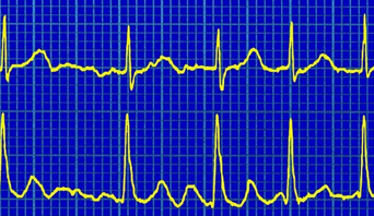 Atrial fibrillation may be defined in various ways, depending on the degree to which it affects you: Paroxysmal atrial fibrillation - this comes and goes and usually stops within 48 hours without any