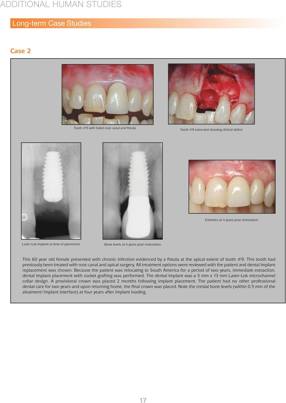 This tooth had previously been treated with root canal and apical surgery. All treatment options were reviewed with the patient and dental implant replacement was chosen.