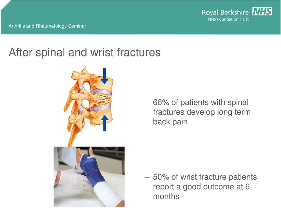 long term back pain 50% of wrist