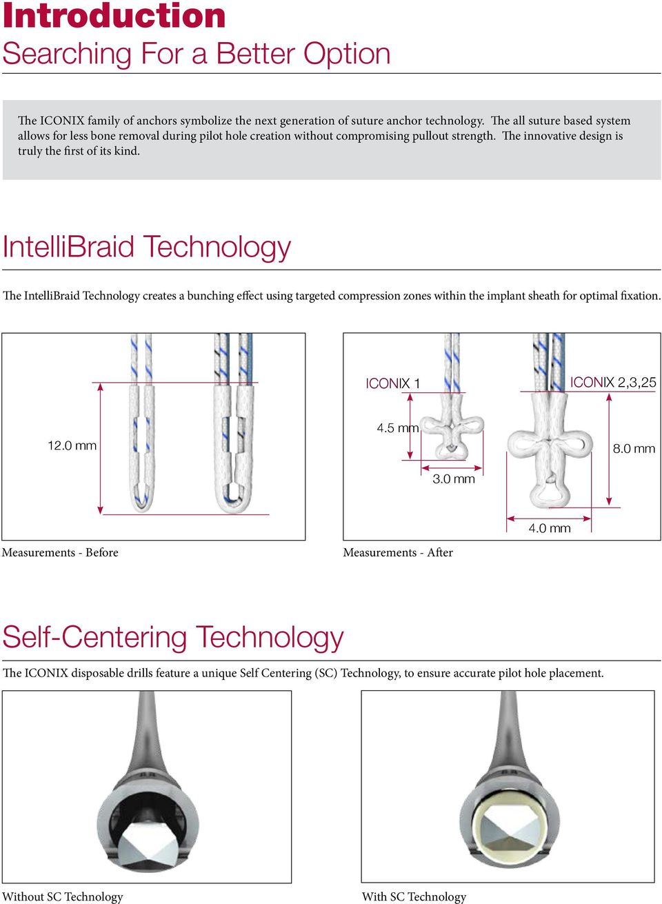 IntelliBraid Technology The IntelliBraid Technology creates a bunching effect using targeted compression zones within the implant sheath for optimal fixation. ICONIX 1 ICONIX 2,3,25 12.