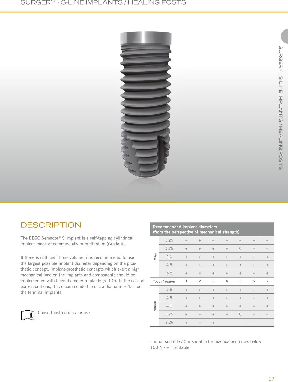Implant-prosthetic concepts which exert a high mechanical load on the implants and components should be implemented with large-diameter implants (> 4.0).