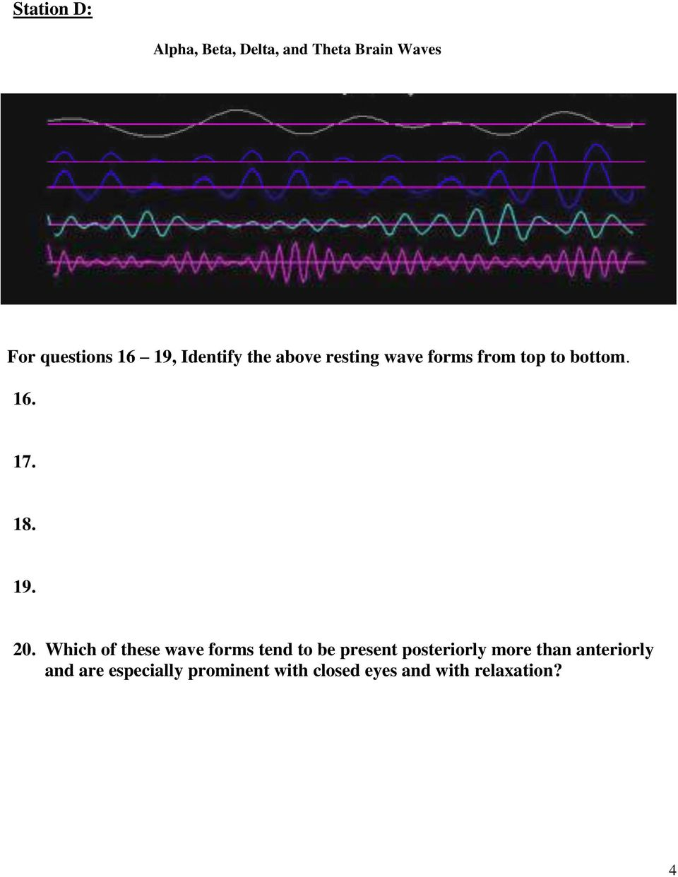20. Which of these wave forms tend to be present posteriorly more than