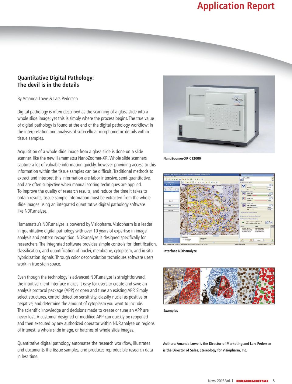 The true value of digital pathology is found at the end of the digital pathology workfl ow: in the interpretation and analysis of sub-cellular morphometric details within tissue samples.