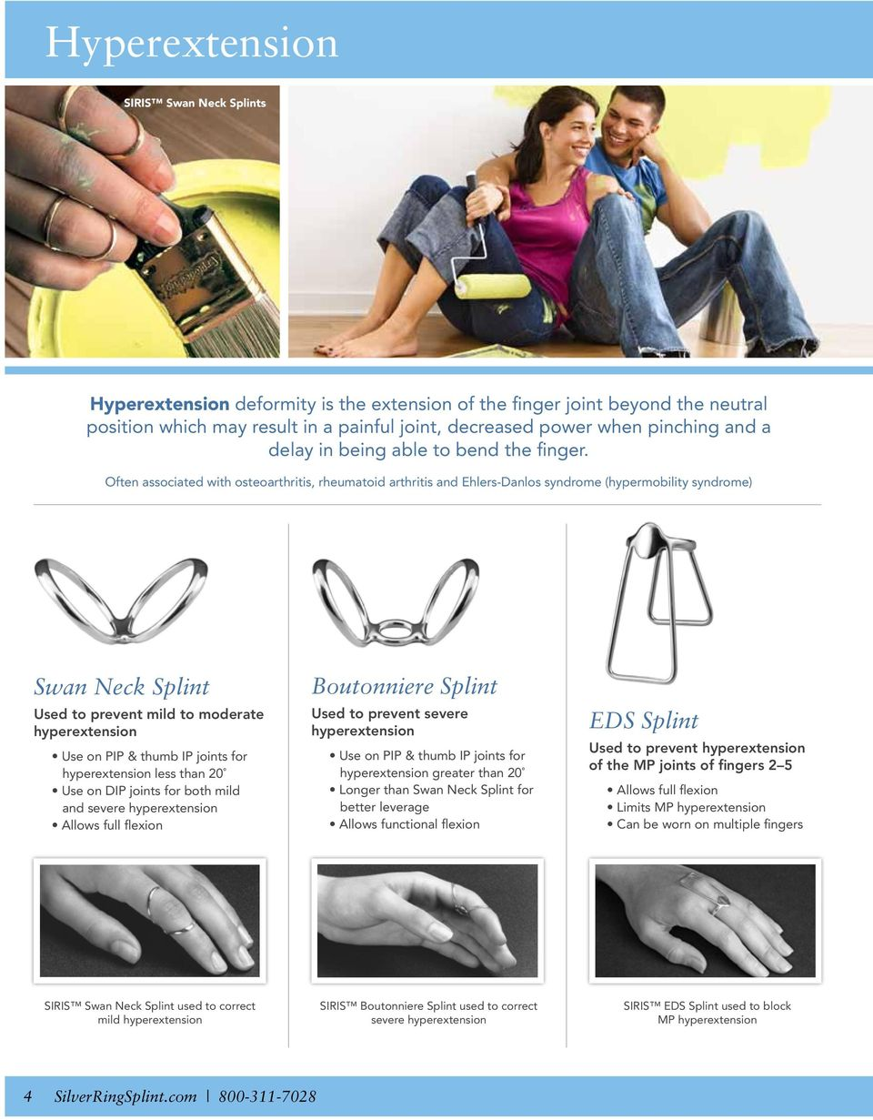Often associated with osteoarthritis, rheumatoid arthritis and Ehlers-Danlos syndrome (hypermobility syndrome) Swan Neck Splint Used to prevent mild to moderate hyperextension Use on PIP & thumb IP