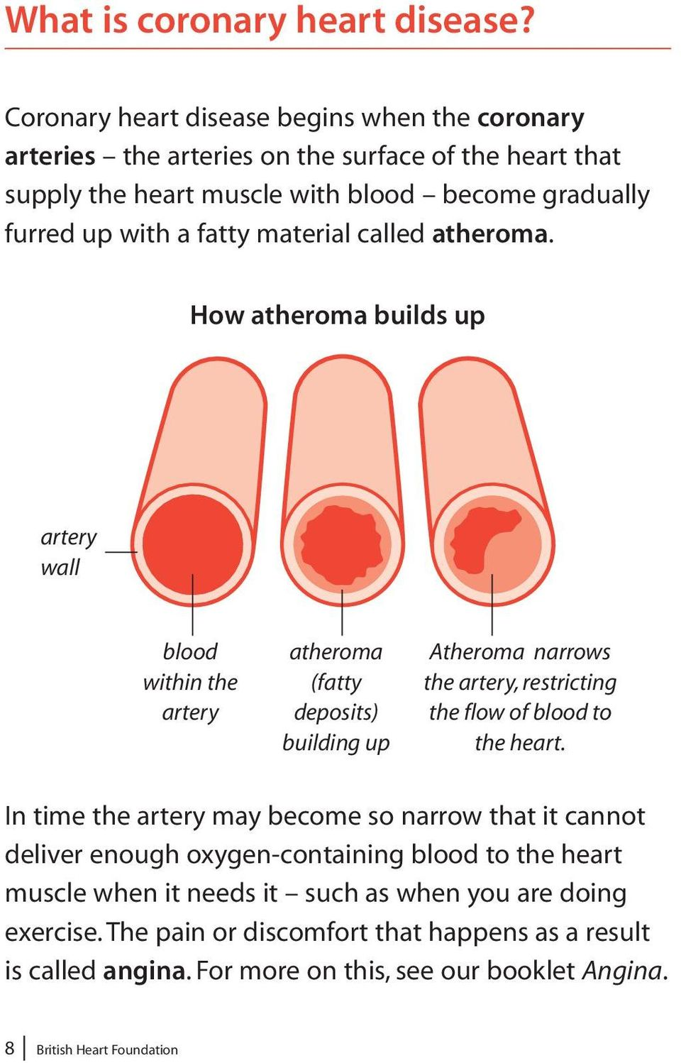 material called atheroma.