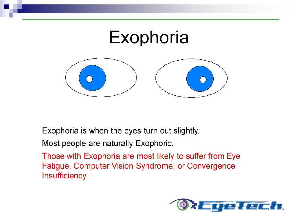 Those with Exophoria are most likely to suffer from