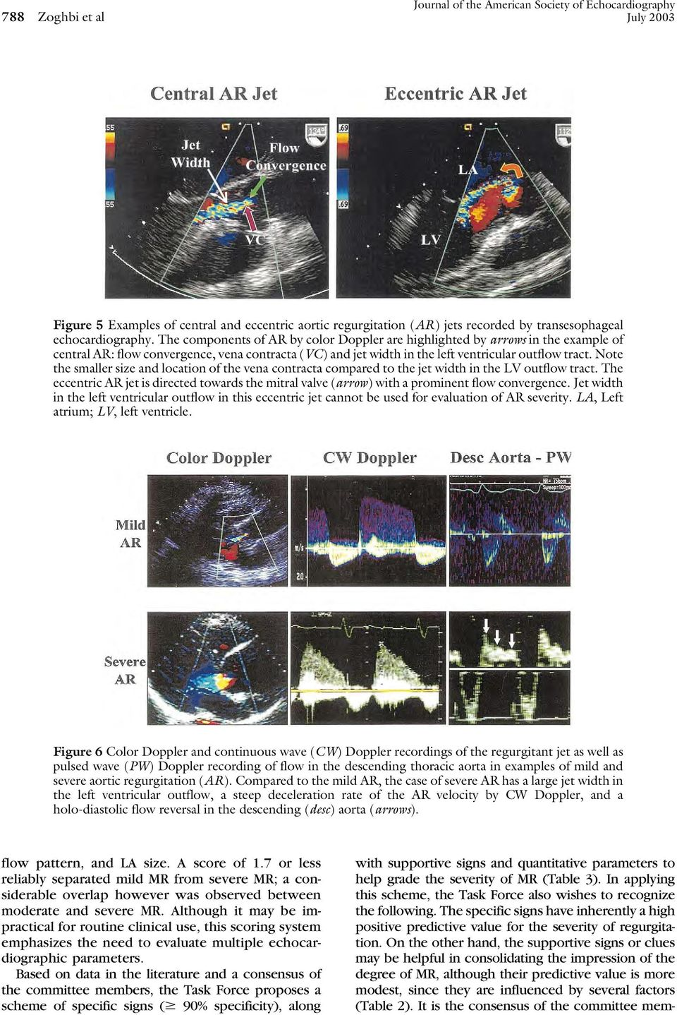 Note the smaller size and location of the vena contracta compared to the jet width in the LV outflow tract.