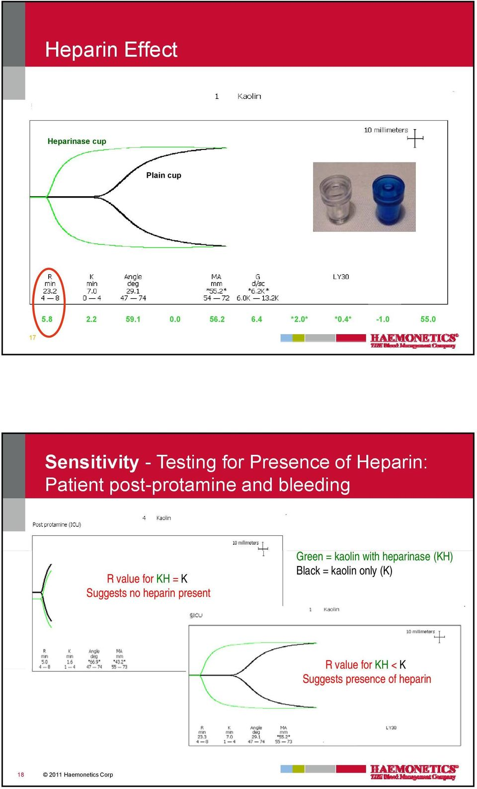R value for KH = K Suggests no heparin present Green = kaolin with heparinase (KH) Black
