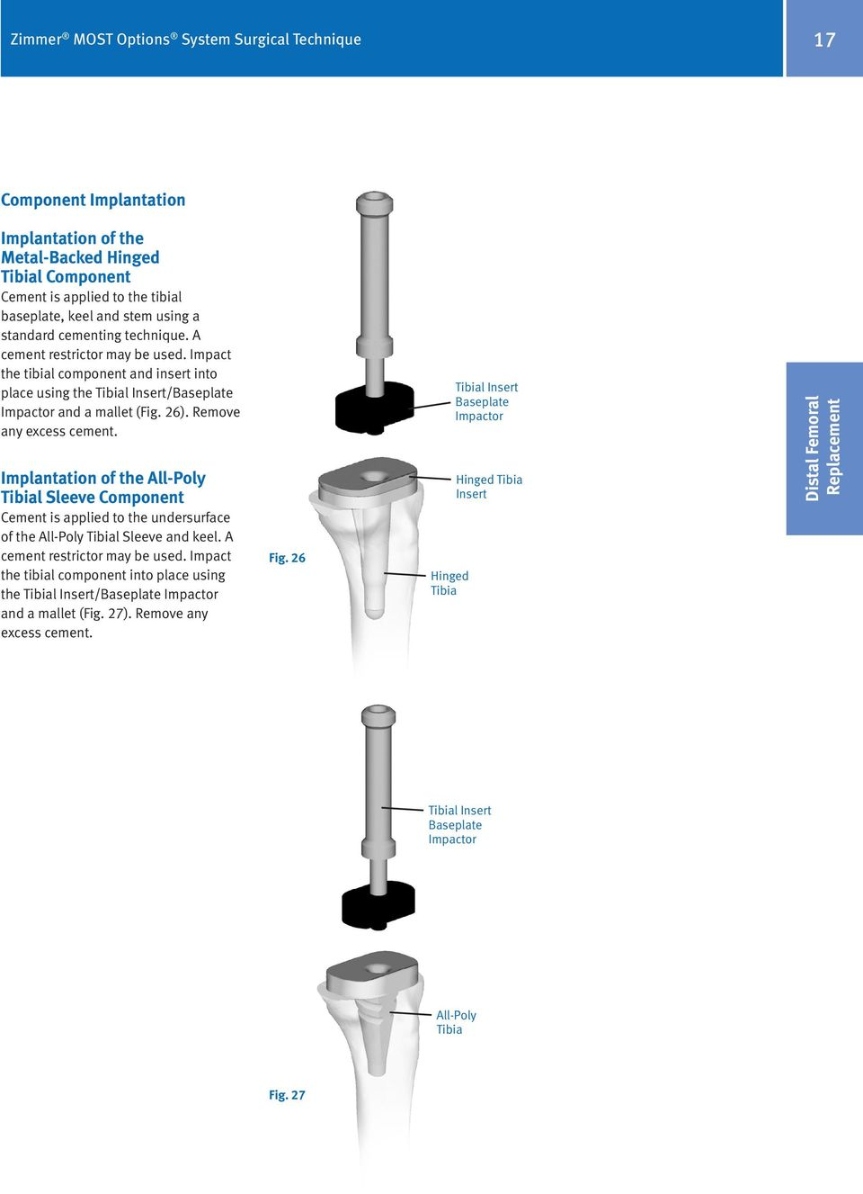Remove any excess cement. Implantation of the All-Poly Tibial Sleeve Component Cement is applied to the undersurface of the All-Poly Tibial Sleeve and keel. A cement restrictor may be used.